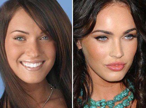 Διάσημες μαμάδες: Οι καλύτερες πλαστικές επεμβάσεις (πριν & μετά) | imommy.gr