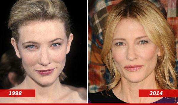 Celebrities: Καλά γονίδια ή καλοί γιατροί; | imommy.gr
