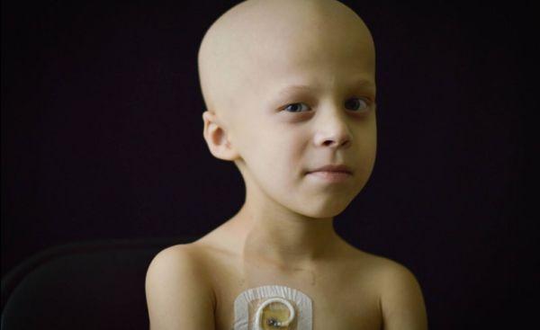 Παγκόσμια Ημέρα Παιδικού Καρκίνου: Η συγκινητική ιστορία ενός 4χρονου | imommy.gr