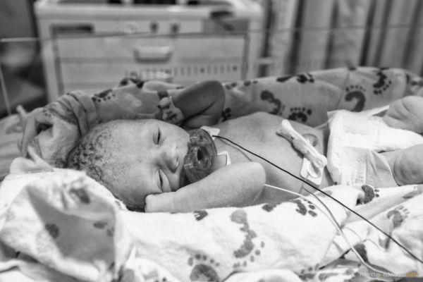 Μια επείγουσα καισαρική σε… εικόνες! | imommy.gr