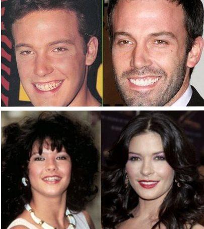 Χόλιγουντ: Οι σταρ που έφτιαξαν τα δόντια τους (πριν & μετά) | imommy.gr