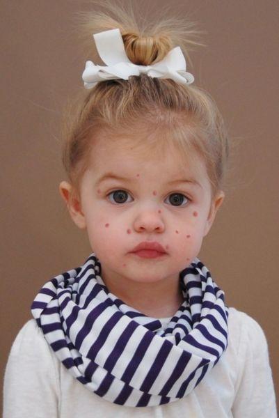 Ανεμοβλογιά: Τι πρέπει να γνωρίζετε γι' αυτή την συνηθισμένη παιδική ασθένεια | imommy.gr