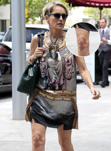 Τα πιο άσχημα γόνατα των σταρ του Χόλιγουντ! | imommy.gr