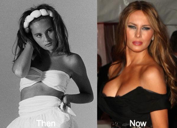 Μελάνια Τραμπ: Η πρώτη κυρία πριν και μετά τις πλαστικές επεμβάσεις! | imommy.gr
