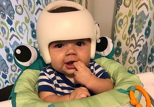 Μωρό έπρεπε να φοράει κράνος. Δείτε πως αντέδρασε η οικογένειά του   imommy.gr