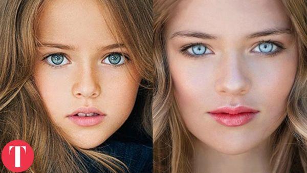 Τι κάνουν σήμερα τα 10 ομορφότερα παιδιά του κόσμου; | imommy.gr