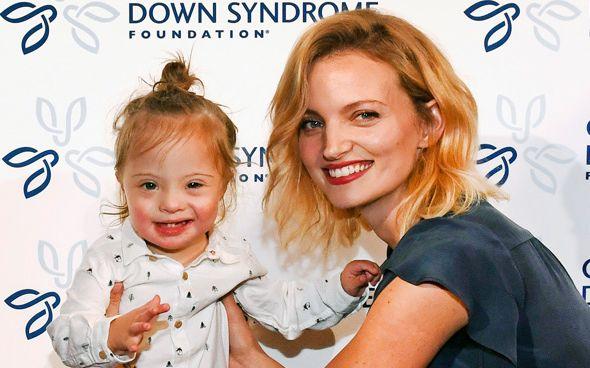 Διάσημο μοντέλο μας συστήνει τον γιο της με σύνδρομο Down | imommy.gr