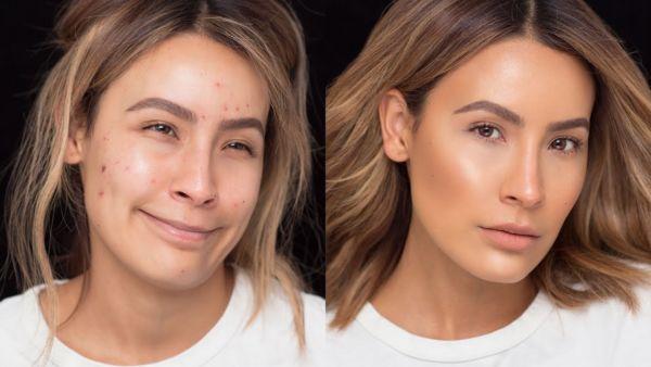 Πως να κρύψω τα σημάδια ακμής; Μια make up artist μας δείχνει! | imommy.gr