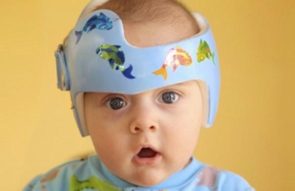 Πλαγιοκεφαλία στα βρέφη: Πως να την προλάβετε και πώς να την θεραπεύσετε | imommy.gr