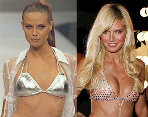 Διάσημες μαμάδες με πλαστική στήθους (πριν & μετά) | imommy.gr