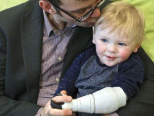 Ο ευρηματικός μπαμπάς που έφτιαξε μηχανικό χέρι για το γιο του | imommy.gr