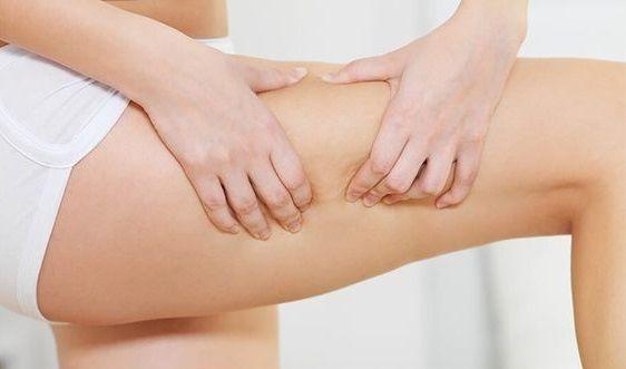 Ασκήσεις για την καταπολέμηση της κυτταρίτιδας | imommy.gr