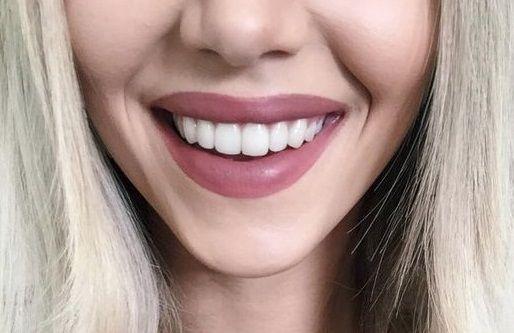 Αποκτήστε φυσικά λευκά δόντια με υλικά που ήδη έχετε | imommy.gr