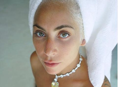 Lady Gaga: Πτώση από μεγάλο ύψος κατά τη διάρκεια συναυλίας της | imommy.gr