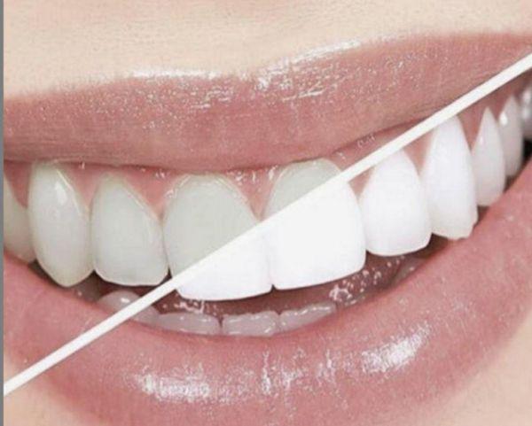 Τα επτά εύκολα βήματα για λευκά δόντια | imommy.gr